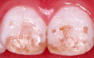 Причины и признаки гипоплазии эмали зубов