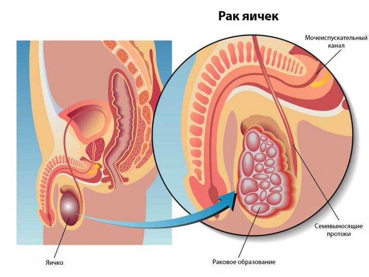 Причины рака яичек