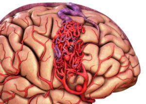 Причины ангиомы головного мозга