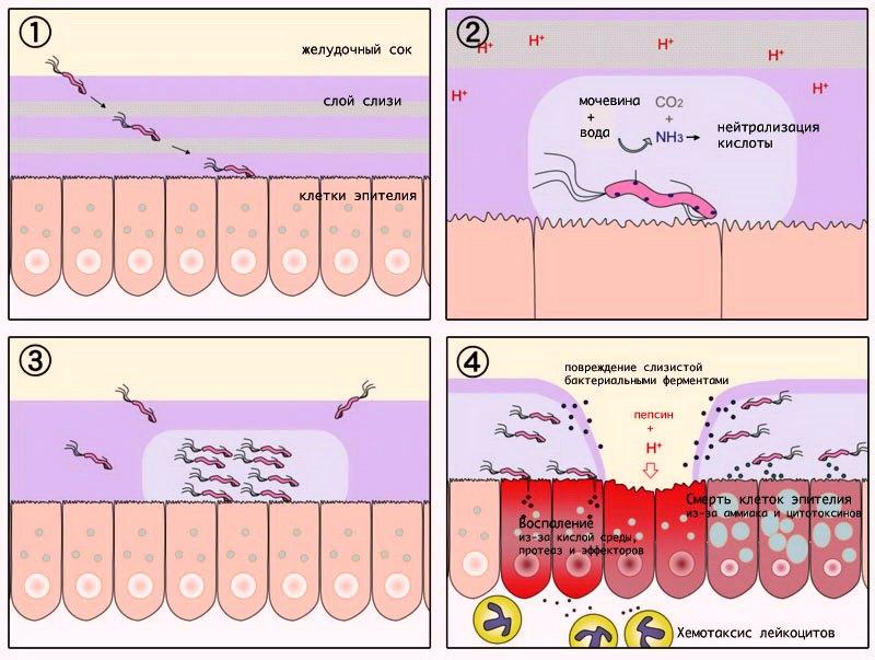 Причины язвенной болезни желудка и факторы риска