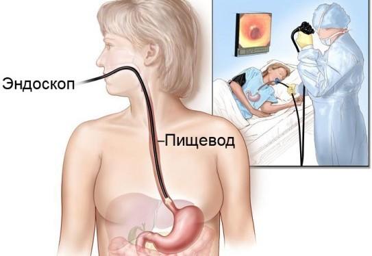Эзофагоскопия при ахалазии кардии пищевода