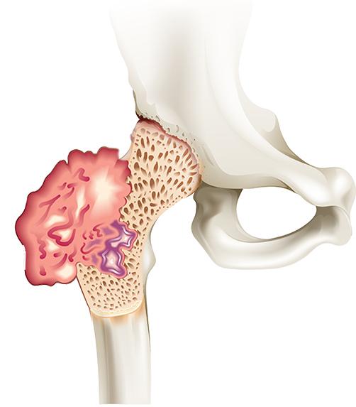 Остеосаркома бедренной кости