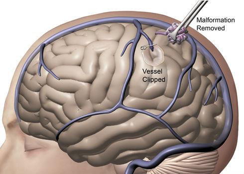 Удаление ангиомы головного мозга