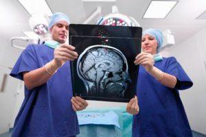 Лечение ангиомы головного мозга