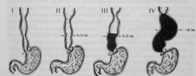 Стадии ахалазии кардии пищевода