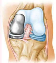 Одномыщелковый эндопротез коленного сустава