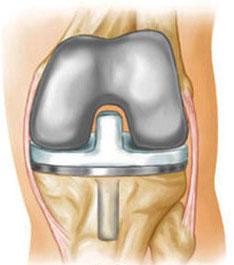 Тотальная замена коленного сустава - полный эндопротез