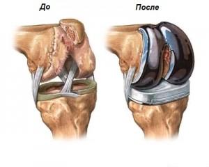 Замена коленного сустава - до и после операции