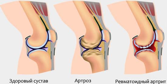 Эндопротезирование коленного сустава - показания и противопоказания