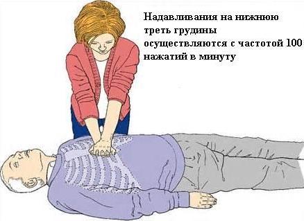 Непрямой массаж сердца и искуственное дыхание при внезапной остановке сердца и дыхания
