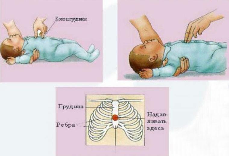 Остановка сердца и дыхания у новорожденных и детей старше - первая помощь