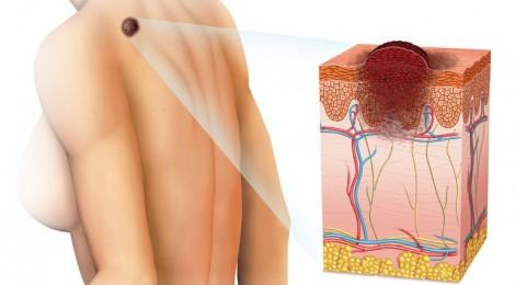 Рак кожи - меланома