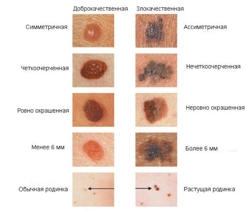 Как визуально определить рак кожи на ранней стадии?