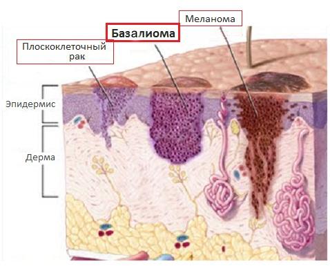 Рак кожи - виды и стадии