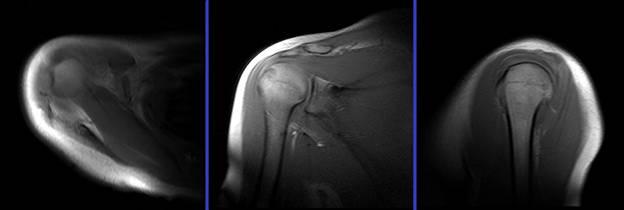 МР артрография плечевого сустава