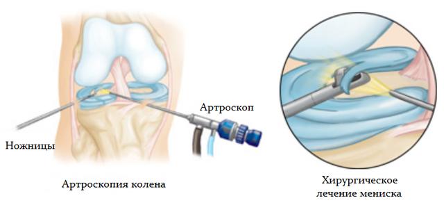 Артроскопия коленного сустава одновременно с хирургическим лечением