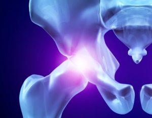 Болезни тазобедренного сустава и бедра