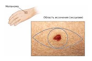 Иссечение меланомы