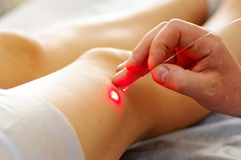 Фотодинамическая терапия раковых заболеваний кожи