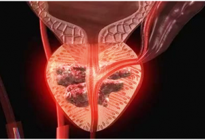 Факторы риска рака простаты у мужчин