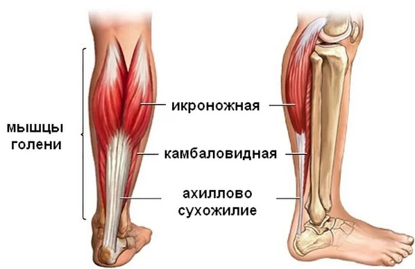 Травмы ахиллова сухожилия