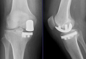 Виды эндопротезов коленного сустава
