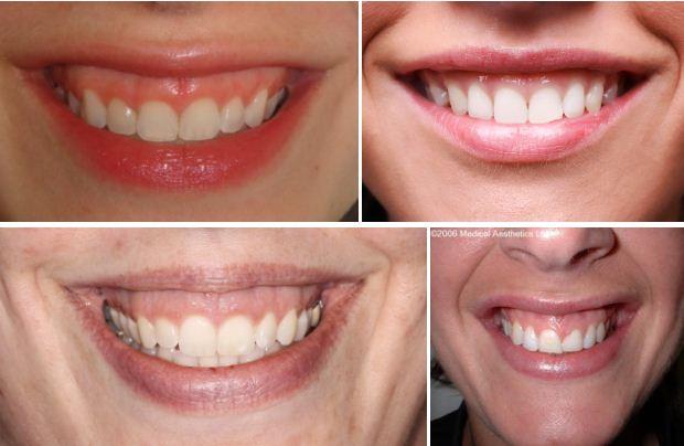 Симптомы и коррекция десневой улыбки