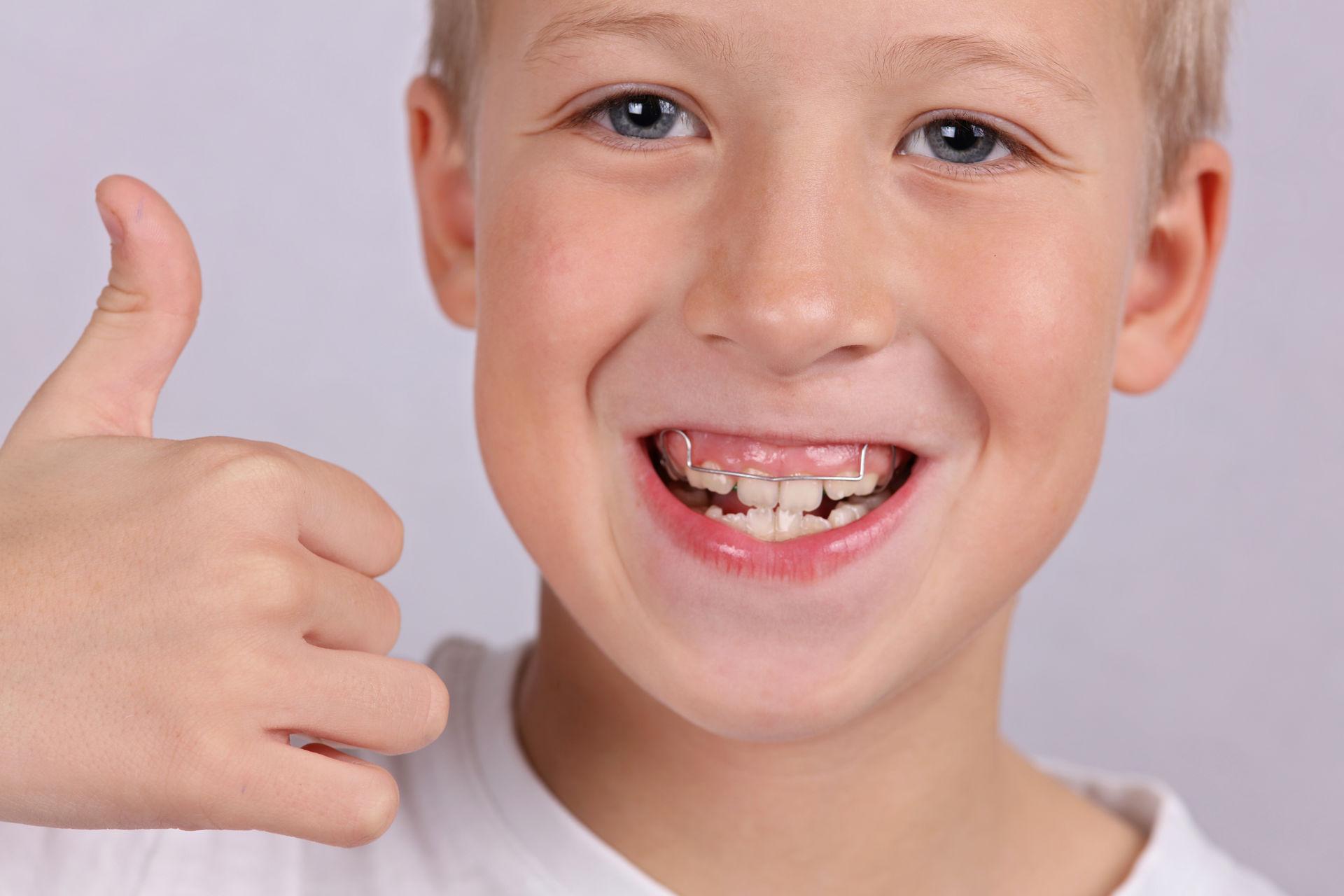 Хирургическая коррекция десневой улыбки - как исправить высокую десну