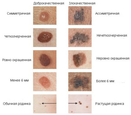 Самообследование на рак кожи
