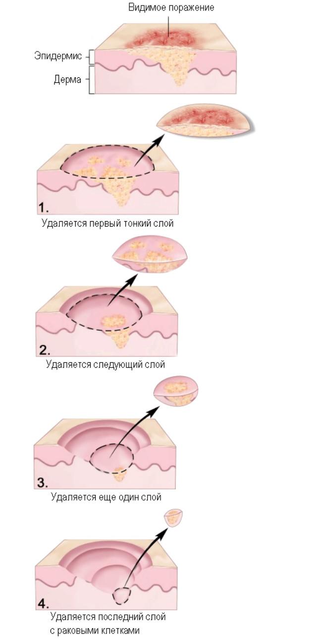 Операция МОС при раке кожи