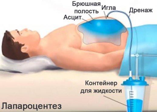 Лечение асцита, операция лапароцентез