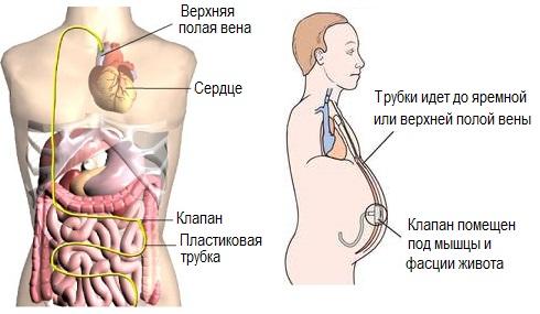 Перитонеовенозное шунтирование в лечении асцита