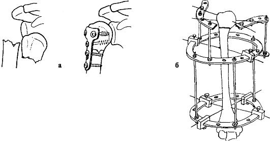 Открытая репозиция и фиксация при переломе плечевой кости