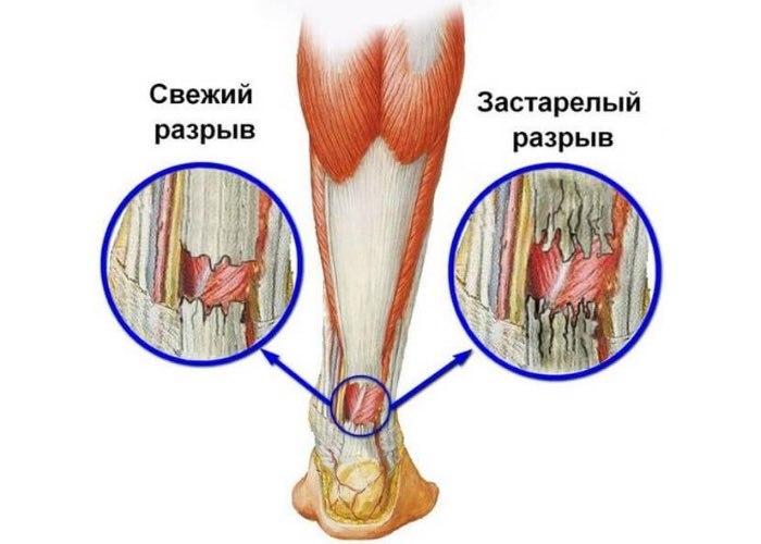 Операции на ахилловом сухожилии - показания