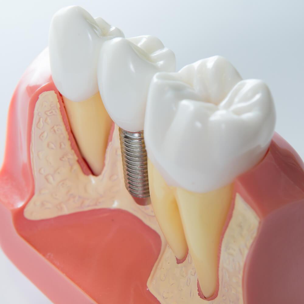 Имплантация кости в стоматологии