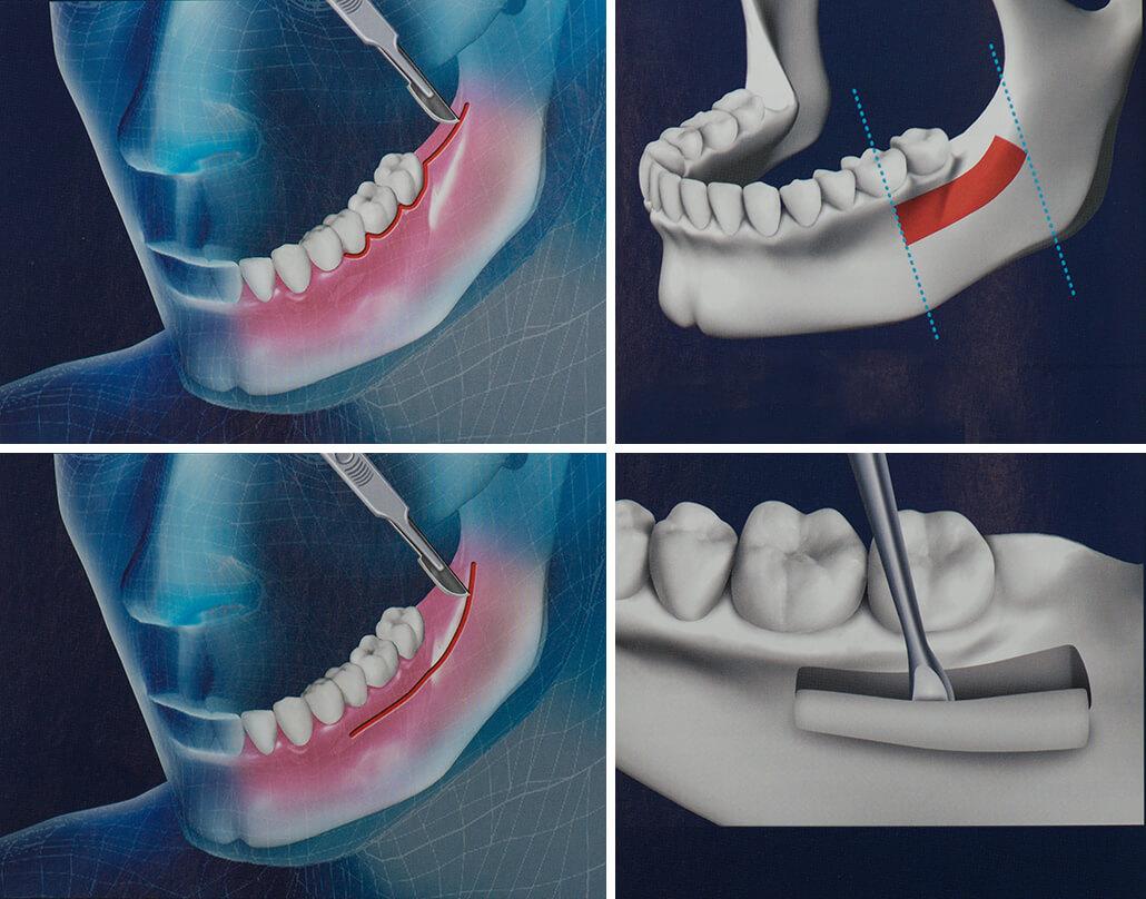 Костная пластика в стоматологии