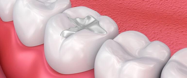 Пломбы, которые восстанавливают зубы, не миф, а реальность!